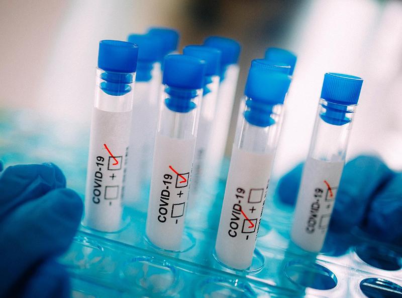 Informações sobre o pós coronavírus na Alemanha